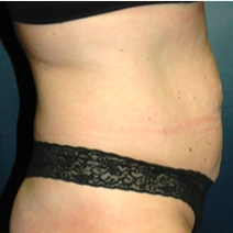 39 year old woman treated with Tummy Tuck before 3578536