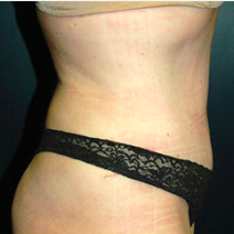 39 year old woman treated with Tummy Tuck after 3578536