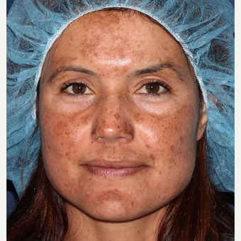 25-34 year old woman treated with Laser Resurfacing