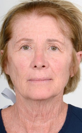 55-64 year old woman treated with Brow Lift before 1563956