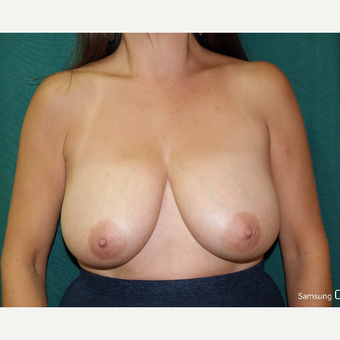 35-44 year old woman treated with Breast Lift/Reduction before 3658187