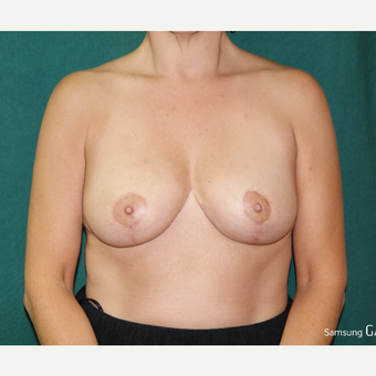 35-44 year old woman treated with Breast Lift/Reduction after 3658187