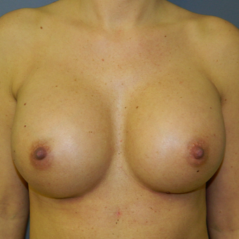 25-34 year old woman treated with Breast Implant Revision after 3522734