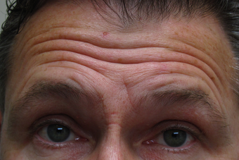 Botox for forehead lines before 1307499