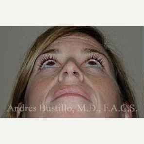 35 year old woman treated with Rhinoplasty before 3462377