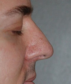Rhinoplasty - Hump Reduction after 182599