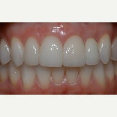 25-34 year old woman treated with Dental Implants after 2585808