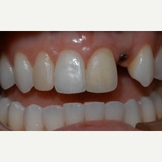 25-34 year old woman treated with Dental Implants before 2585808