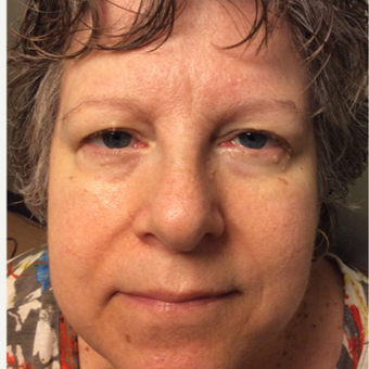 55-64 year old women with browlift and upper lid blepharoplasty
