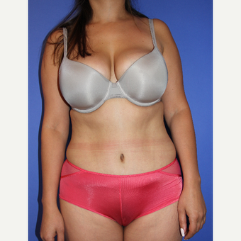 35-44 year old woman treated with Tummy Tuck after 3201177