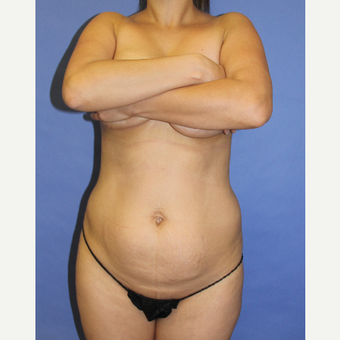 35-44 year old woman treated with Tummy Tuck before 3201177