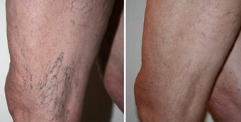 Vericose VeinTreatment ( Before and After)