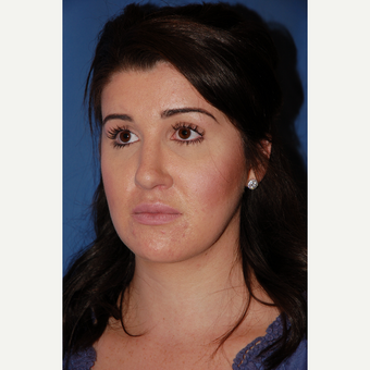 25-34 year old woman treated with Rhinoplasty after 3288898