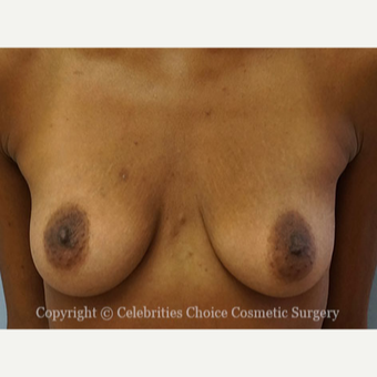 25-34 year old woman treated with Breast Implants before 3853569