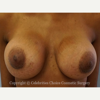 25-34 year old woman treated with Breast Implants after 3853569