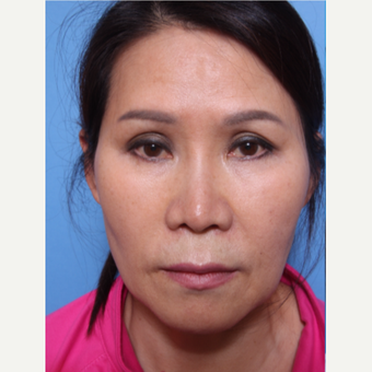 55-64 year old woman treated with Revision Rhinoplasty before 3507111