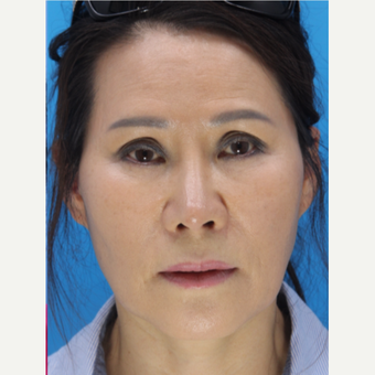 55-64 year old woman treated with Revision Rhinoplasty after 3507111