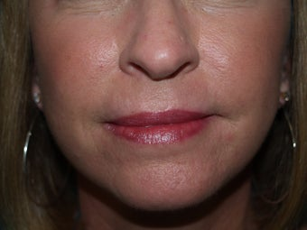 Dermabrasion for lines around the mouth after 1352459