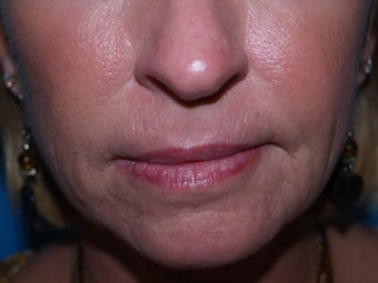 Dermabrasion for lines around the mouth before 1352459