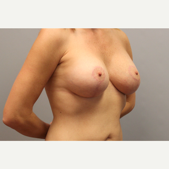 35-44 year old woman treated with Breast Lift with Implants after 3537163