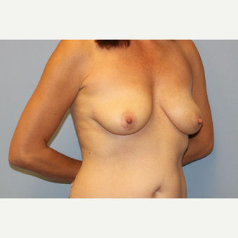 35-44 year old woman treated with Breast Lift with Implants before 3537163