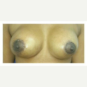 18-24 year old woman treated with Breast Lift with Implants after 1978486