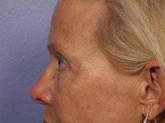 Eyelid Surgery after 280872