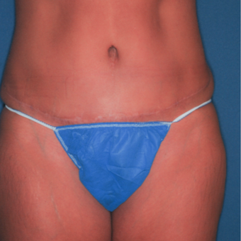 35-44 year old woman treated with Tummy Tuck after 3371597