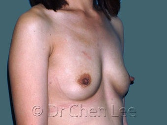Ethnic Breast Augmentation 930292