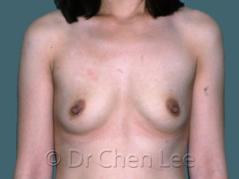 Ethnic Breast Augmentation before 930292