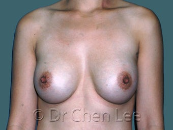 Ethnic Breast Augmentation after 930292