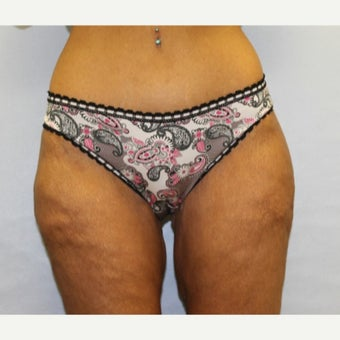 47year old woman treated with Tummy Tuck/ body lift