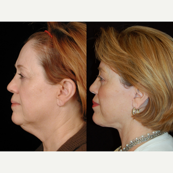 65-74 year old woman treated with Facelift after 3658842