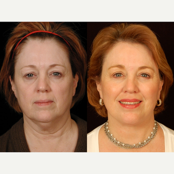 65-74 year old woman treated with Facelift before 3658842