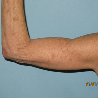 45-54 year old woman treated with Arm Lift after 3392325