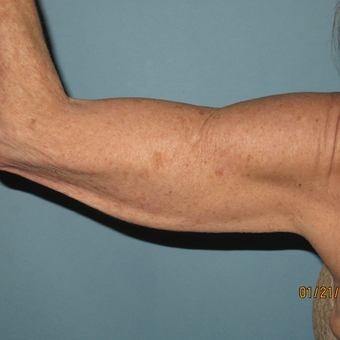 45-54 year old woman treated with Arm Lift before 3392325