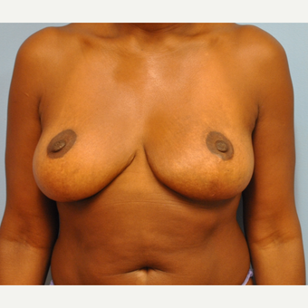 44 Year old woman treated with 500 g breast reduction.  36 H to 36 C after 3304117
