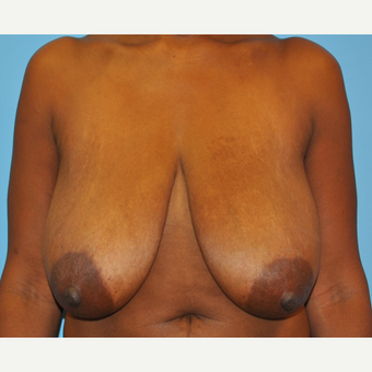 44 Year old woman treated with 500 g breast reduction.  36 H to 36 C before 3304117