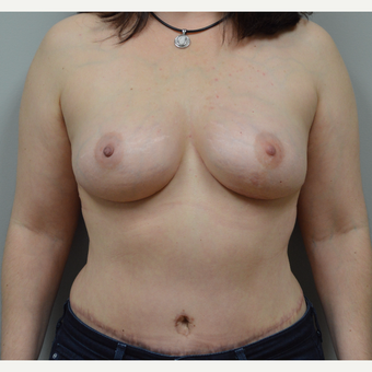 35-44 year old woman treated with Breast Reconstruction after 3142216