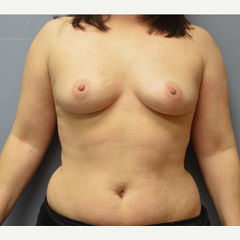 35-44 year old woman treated with Breast Reconstruction before 3142216