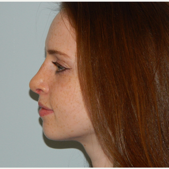 35-44 year old woman treated with Rhinoplasty after 3506472