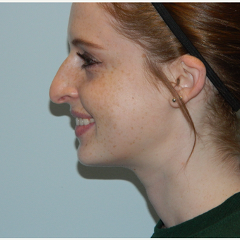 35-44 year old woman treated with Rhinoplasty before 3506472
