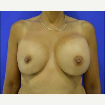 52 year old woman treated with Breast Reconstruction Revision before 3725423