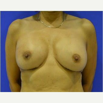 52 year old woman treated with Breast Reconstruction Revision after 3725423