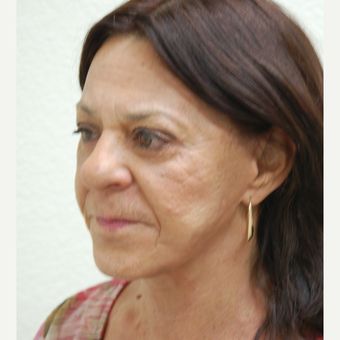 55-64 year old woman treated with Facelift after 3310928