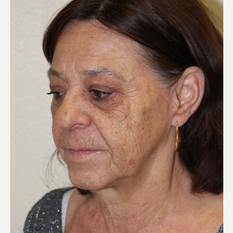 55-64 year old woman treated with Facelift before 3310928