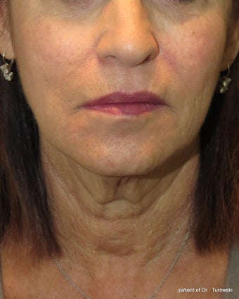 Facelift and neck lift  before 1440654