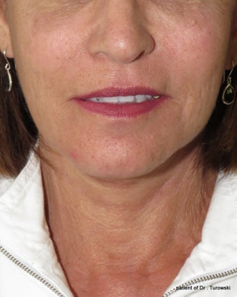 Facelift and neck lift  after 1440654