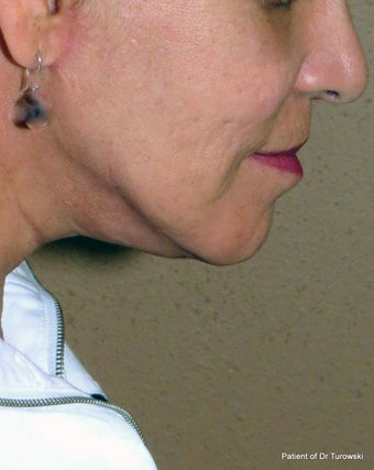 Facelift and neck lift  1440654