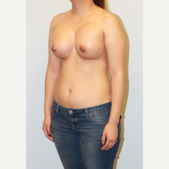 18-24 year old woman treated with Breast Augmentation after 3563867